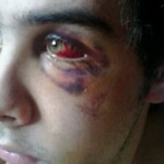 Brutal agresión antijudía en Andorra